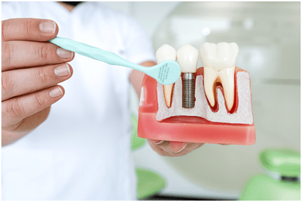 Dental Implants: Your FAQs Answered!