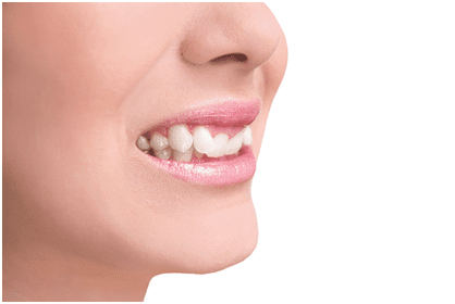 Are My Oral Health Problems Hereditary