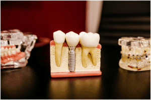 these-4-signs-could-mean-your-wisdom-teeth-are-impacted