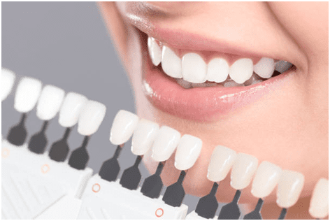 5 Reasons to Consider Professional Teeth Whitening
